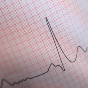 elettrocardiogramma-ecg